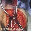 Il profilo molecolare dell'artrosi