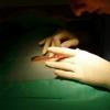 Controllare il mastocita per migliorare la cicatrizzazione post-chirurgica