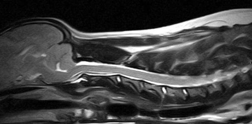 In caso di dolore neuropatico lombo-sacrale
